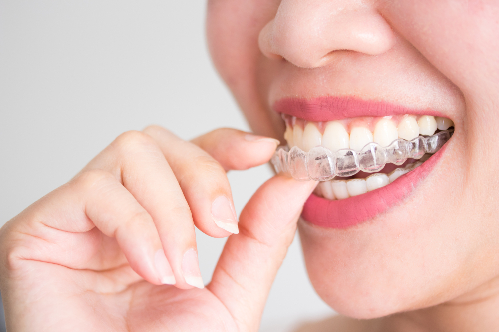 young woman applying invisalign aligners
